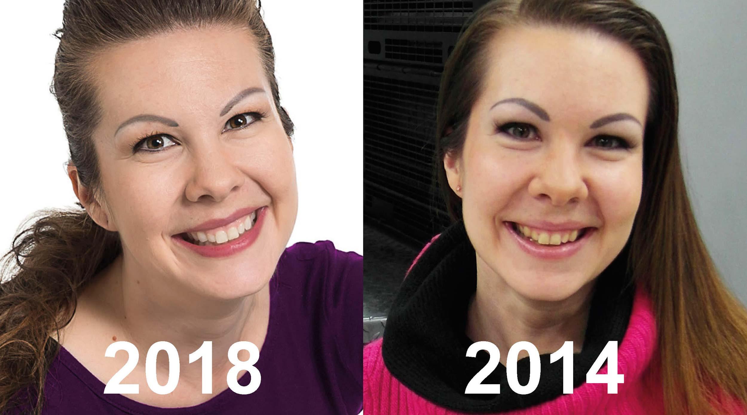 Hampaiden valkaisussa – keltahampaasta valkohampaaksi